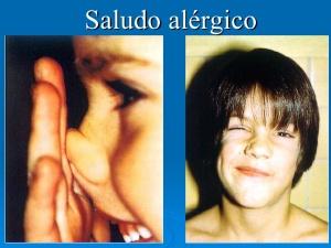 mecanismos-de-la-respuesta-alrgica-rinitis-y-asma-43-728